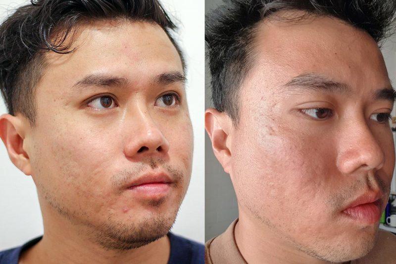 Acne Scar Treatment Comparison