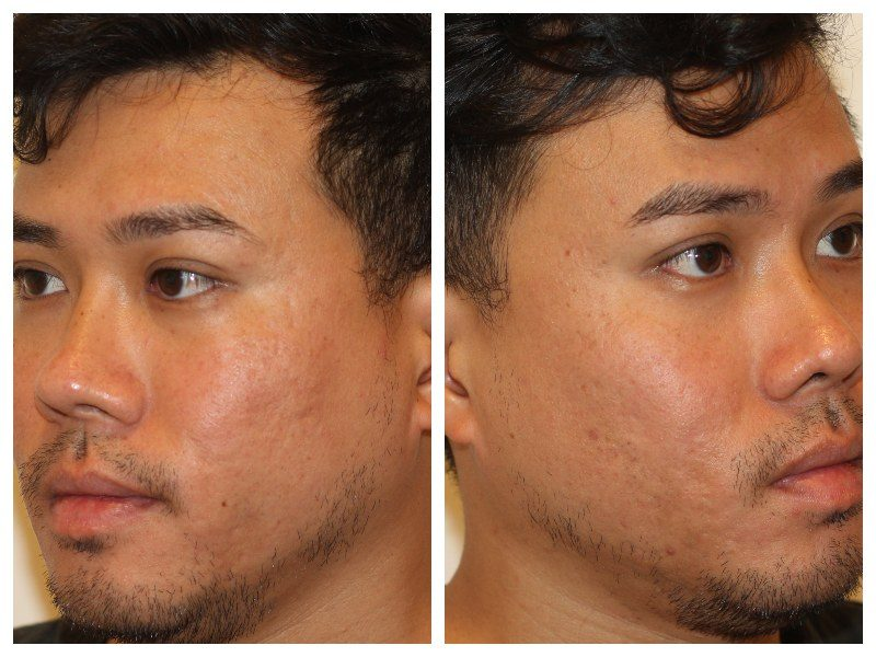 After Co2 Treatment Infini