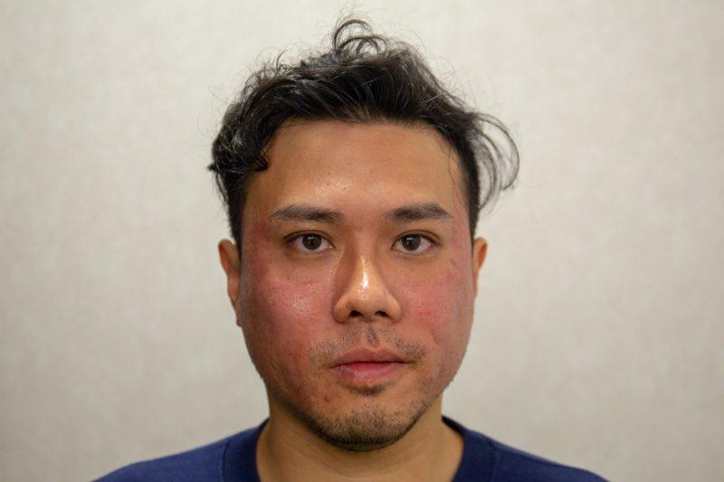 Acne Scar Treatment Co2 Inifini Singapore 4314