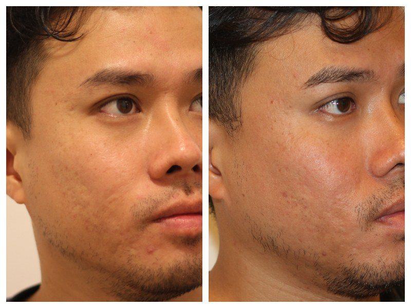 Acne Scar Treatment: CO2 Fractional Laser Skin Resurfacing