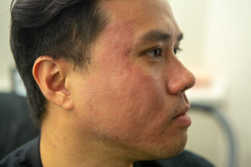 Acne Scar Treatment Co2 Laser Infini Results After A Couple Sessions